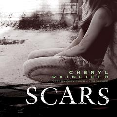 Scars by Cheryl Rainfield audiobook
