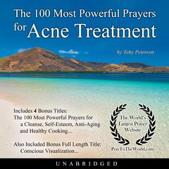 The 100 Most Powerful Prayers for Acne Treatment by Toby Peterson audiobook
